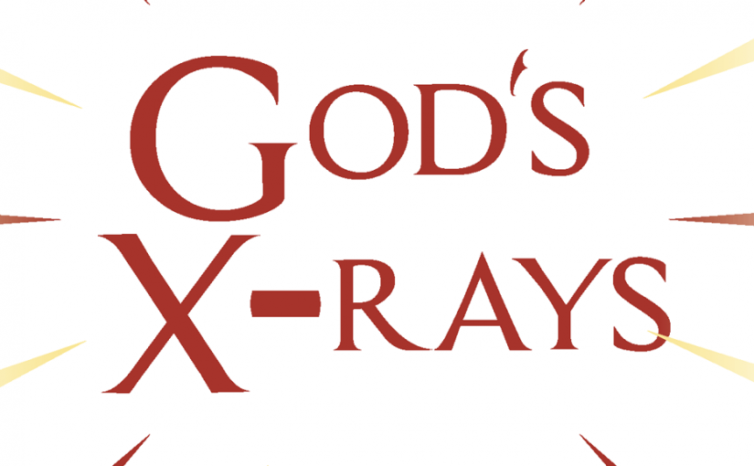 God's X-Rays–Large Print Tract